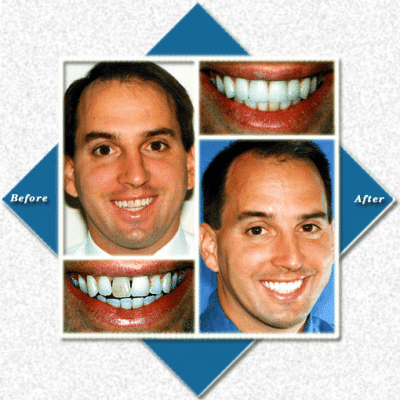 Man before and after cosmetic dentistry
