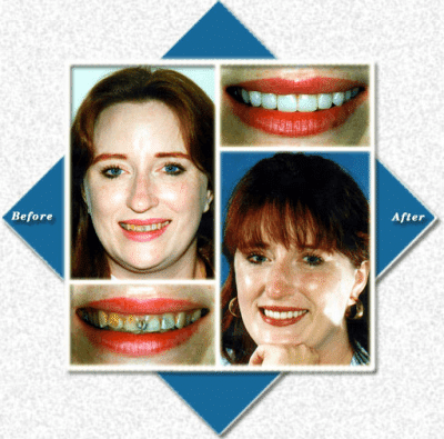 Woman with red hair before and after cosmetic dentist visit