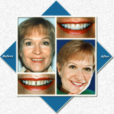 Woman with gap in teeth before and after cosmetic dentistry