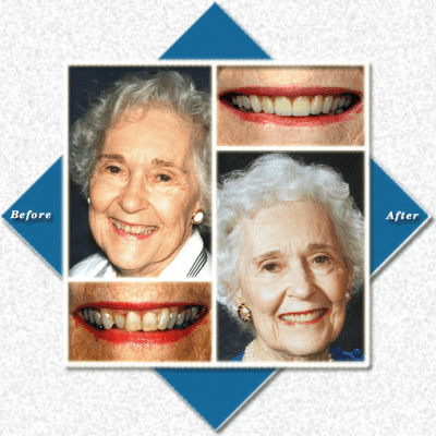 Older woman before and after cosmetic dentistry