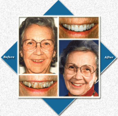 older woman with glasses before and after cosmetic dentistry