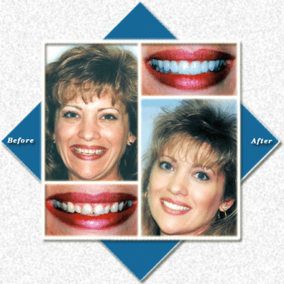 Mom smiles before and after cosmetic dentistry