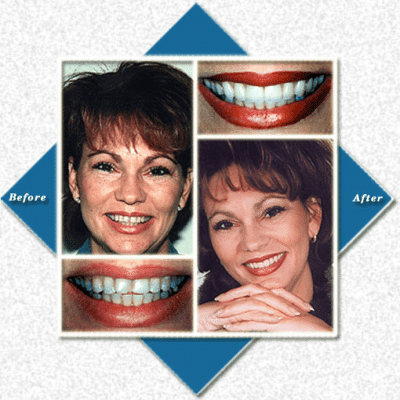 Glamorous woman before and after cosmetic dentistry