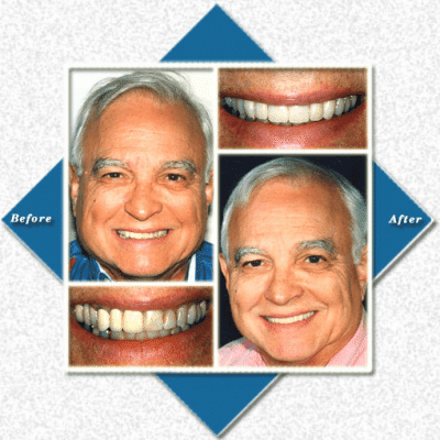 Mature man before and after cosmetic dentistry