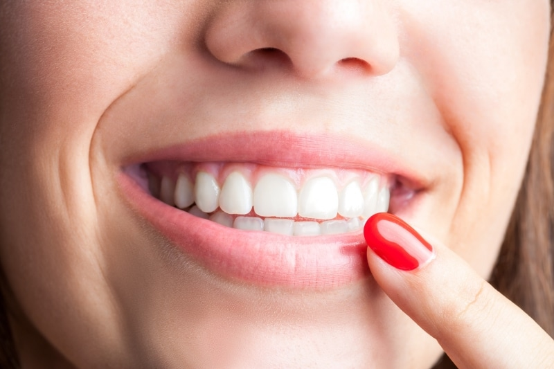 Preventative care can help you get the best teeth and the best smile
