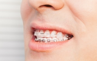 Man's smile with dental braces on teeth