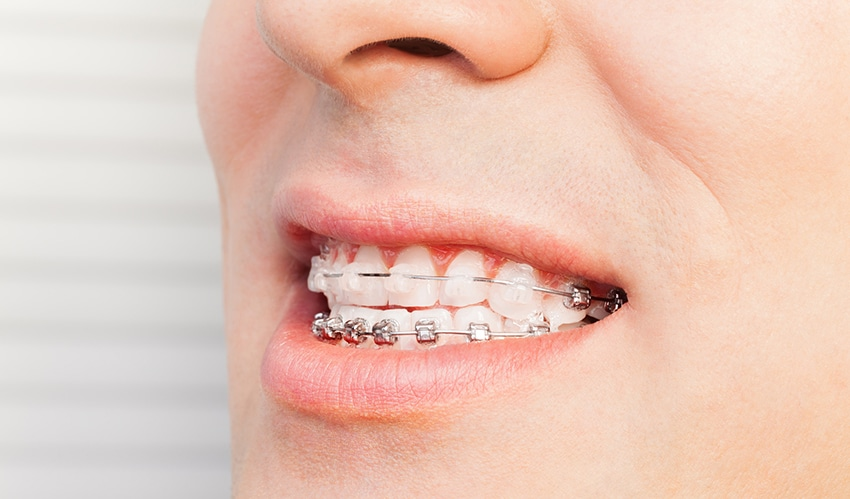 Man's smile with dental braces on teeth