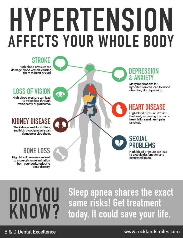 Sleep Apnea Infographic at B&D Dental in Rockland County