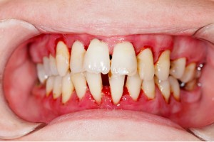 A mouth with gum disease