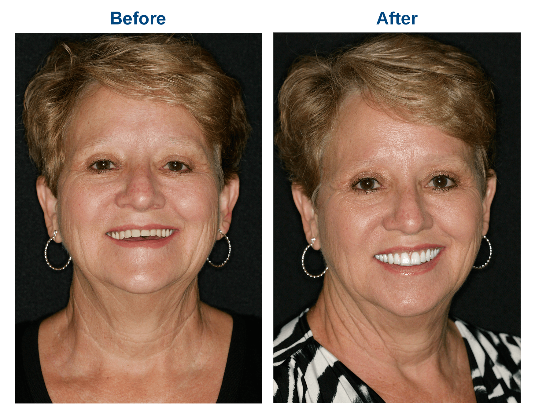 great results from dentures