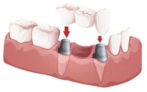 Illustration of dental bridges and crowns