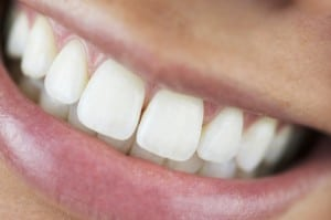 Invisalign can straighten and beautify your smile